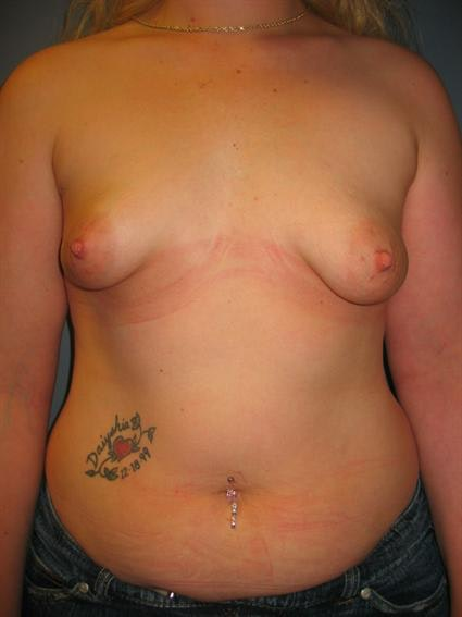 Tuberous Breast Surgery Gallery - Patient 1310505 - Image 1
