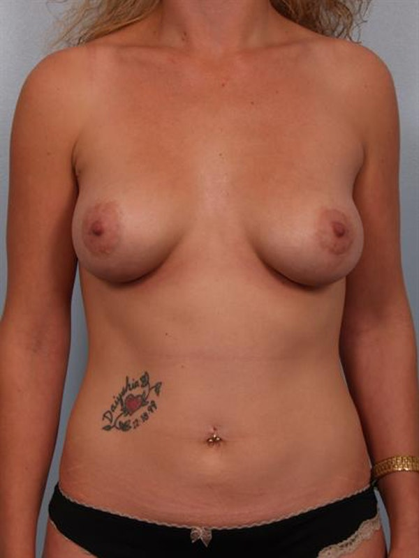 Tuberous Breast Surgery Gallery - Patient 1310505 - Image 2