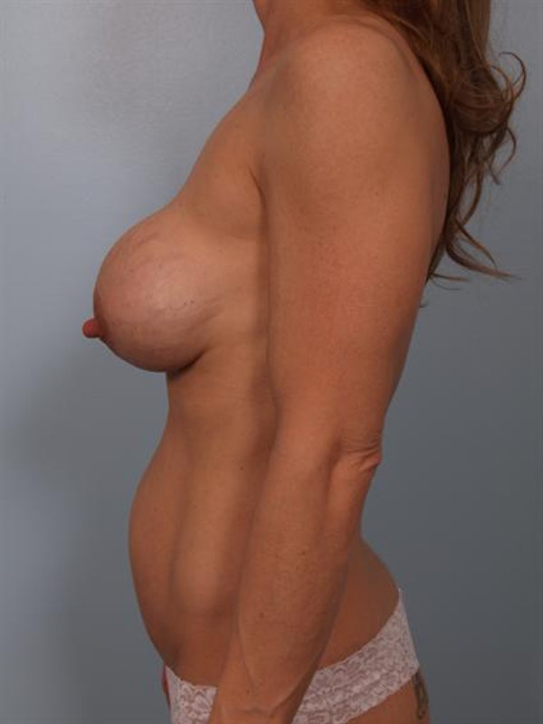 Complex Breast Revision Gallery - Patient 1310504 - Image 3