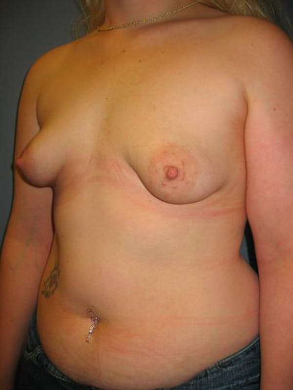 Tuberous Breast Surgery Gallery - Patient 1310505 - Image 3
