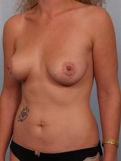 Tuberous Breast Surgery Gallery - Patient 1310505 - Image 4