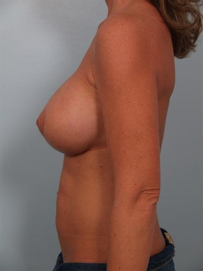 Breast Lift Gallery - Patient 1310503 - Image 6