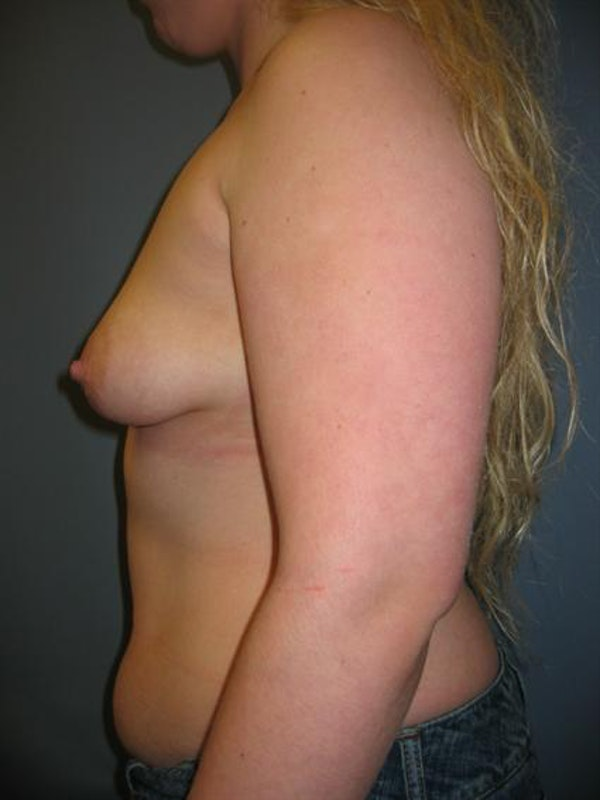 Tuberous Breast Surgery Gallery - Patient 1310505 - Image 5