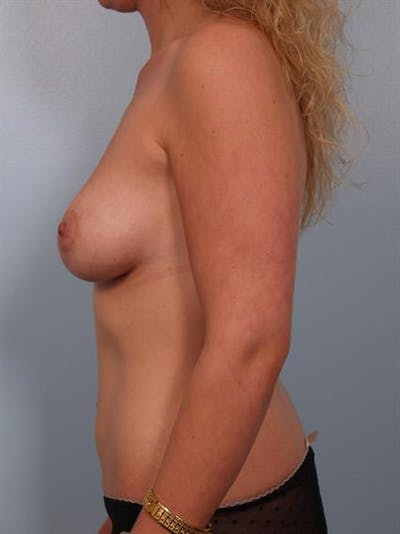 Tuberous Breast Surgery Gallery - Patient 1310505 - Image 6