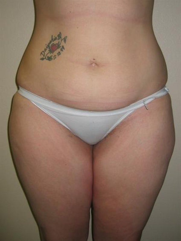 Tuberous Breast Surgery Gallery - Patient 1310505 - Image 7