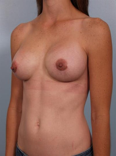 Complex Breast Revision Gallery - Patient 1310507 - Image 4