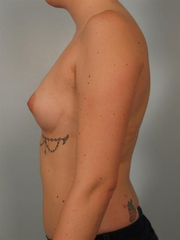 Breast Augmentation Gallery - Patient 1310506 - Image 5