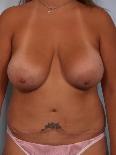 Breast Lift Gallery - Patient 1310508 - Image 1
