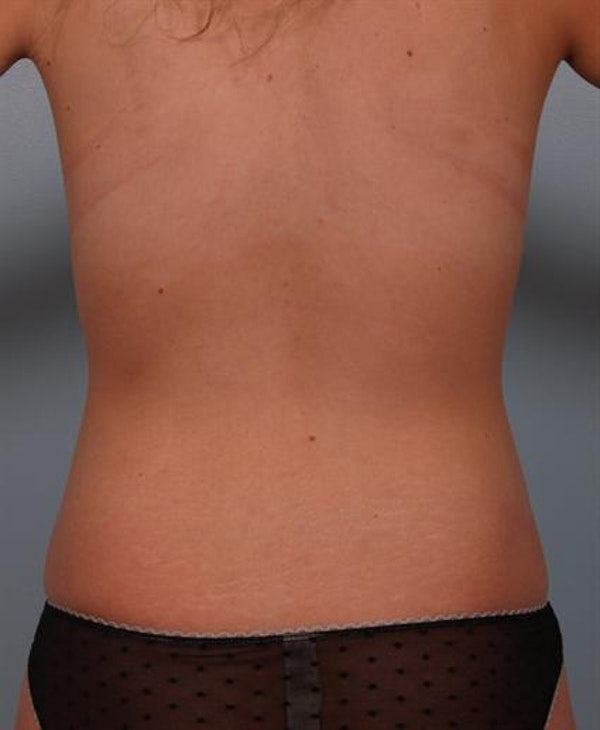Tuberous Breast Surgery Gallery - Patient 1310505 - Image 10