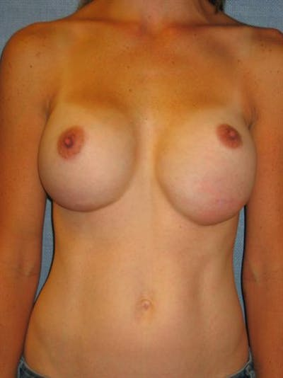 Complex Breast Revision Gallery - Patient 1310507 - Image 1