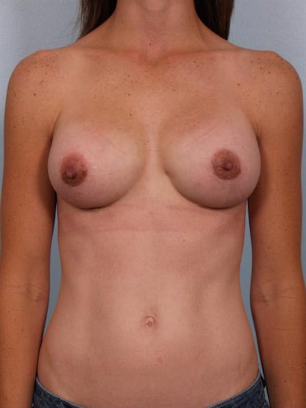 Complex Breast Revision Gallery - Patient 1310507 - Image 2