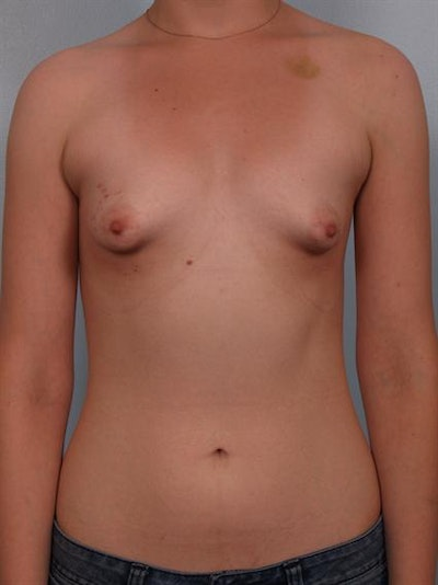 Tuberous Breast Surgery Gallery - Patient 1310509 - Image 1