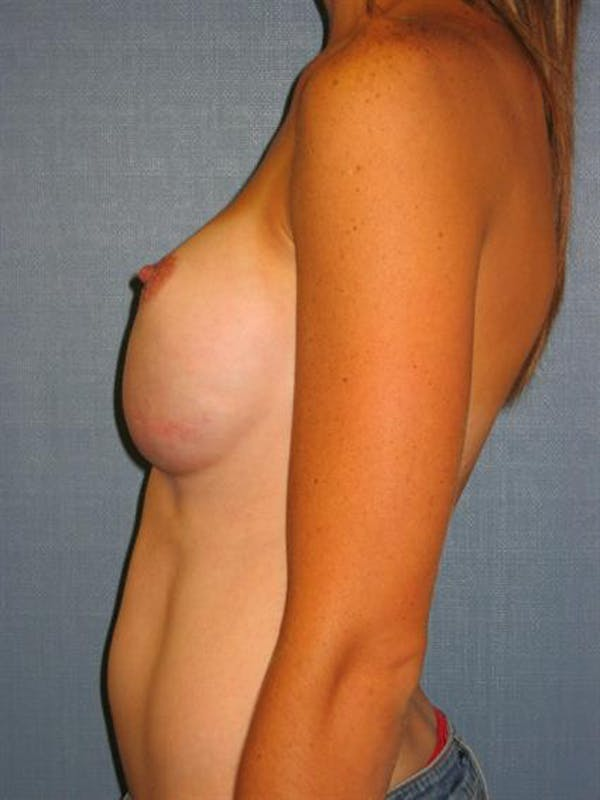 Complex Breast Revision Gallery - Patient 1310507 - Image 5