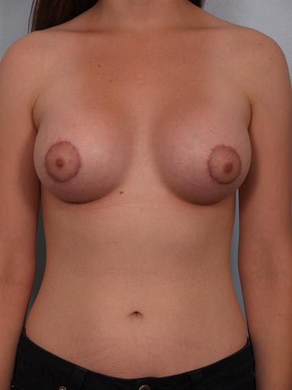 Tuberous Breast Surgery Gallery - Patient 1310509 - Image 2