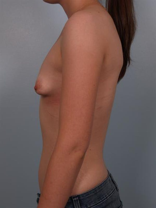 Tuberous Breast Surgery Gallery - Patient 1310509 - Image 3