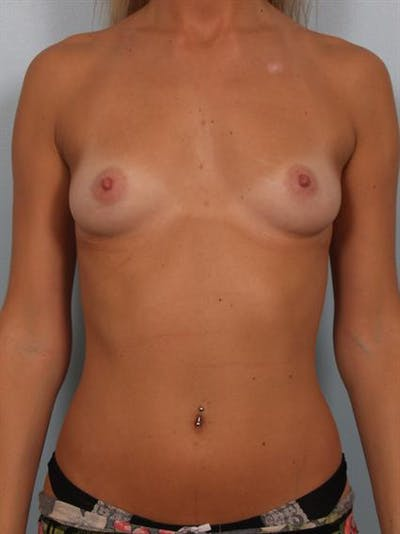 Breast Augmentation Gallery - Patient 1310512 - Image 1