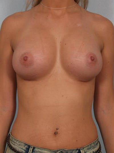 Breast Augmentation Gallery - Patient 1310512 - Image 2