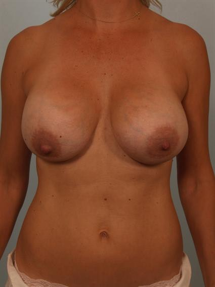Complex Breast Revision Gallery - Patient 1310510 - Image 1