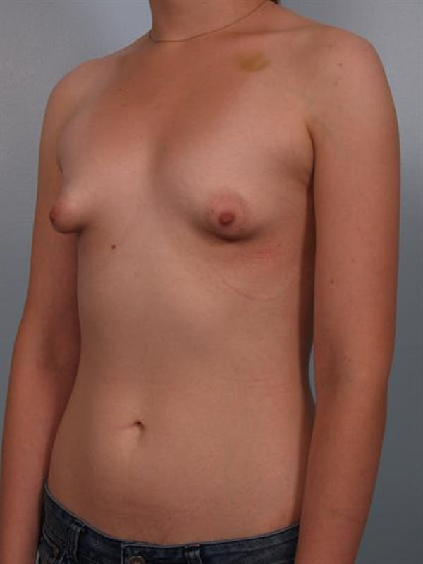 Tuberous Breast Surgery Gallery - Patient 1310509 - Image 5