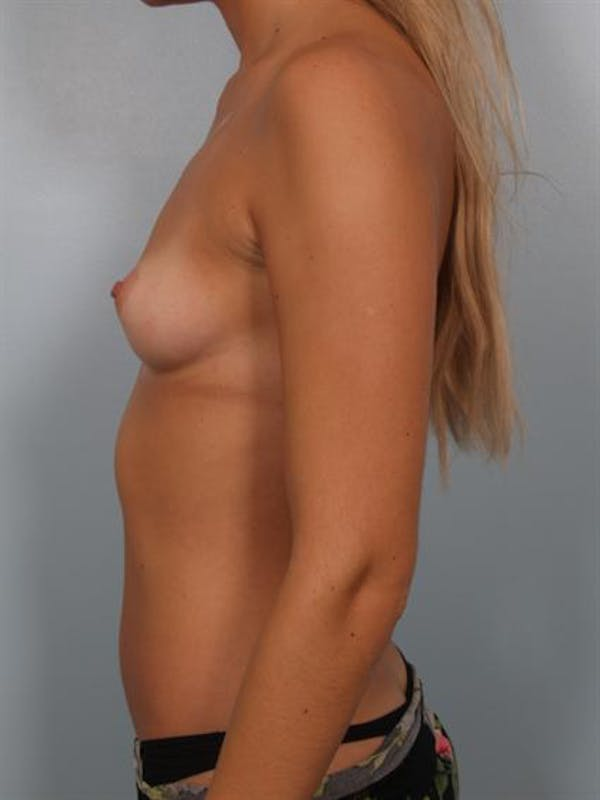 Breast Augmentation Gallery - Patient 1310512 - Image 3