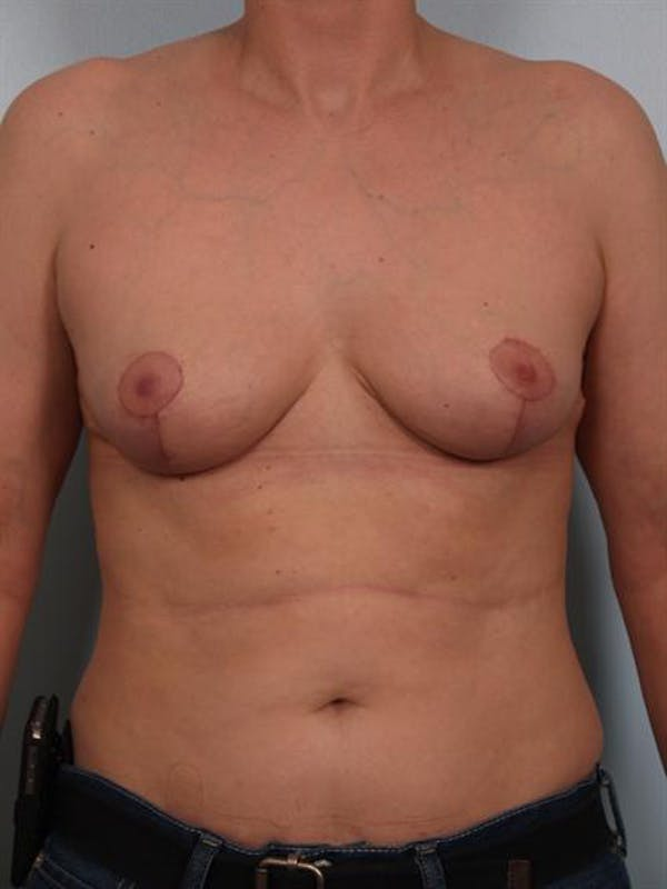 Breast Lift Gallery - Patient 1310511 - Image 2