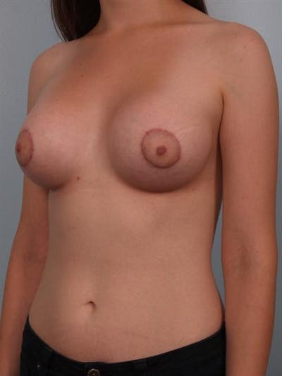 Tuberous Breast Surgery Gallery - Patient 1310509 - Image 6