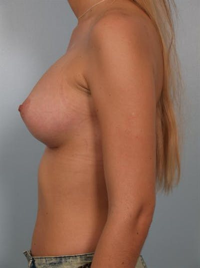 Breast Augmentation Gallery - Patient 1310512 - Image 4