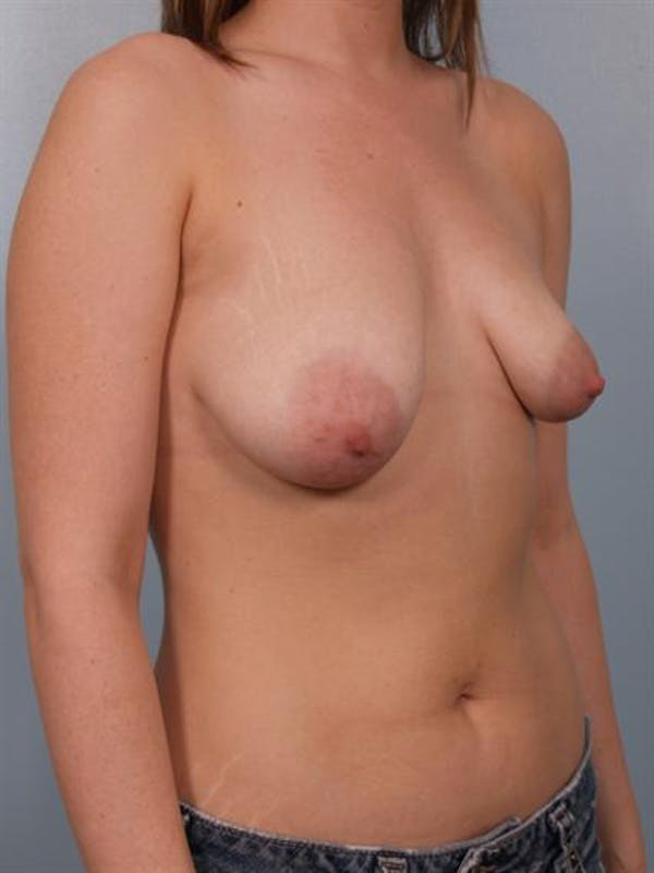 Tuberous Breast Surgery Gallery - Patient 1310513 - Image 3