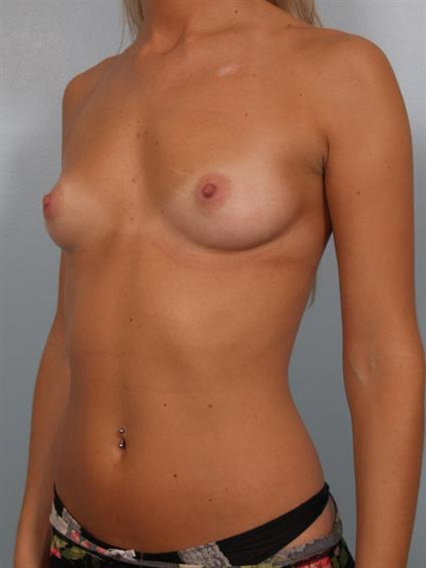 Breast Augmentation Gallery - Patient 1310512 - Image 5