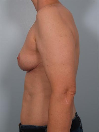 Breast Lift Gallery - Patient 1310511 - Image 4