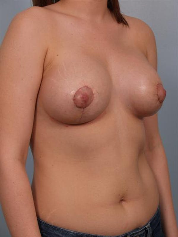 Tuberous Breast Surgery Gallery - Patient 1310513 - Image 4