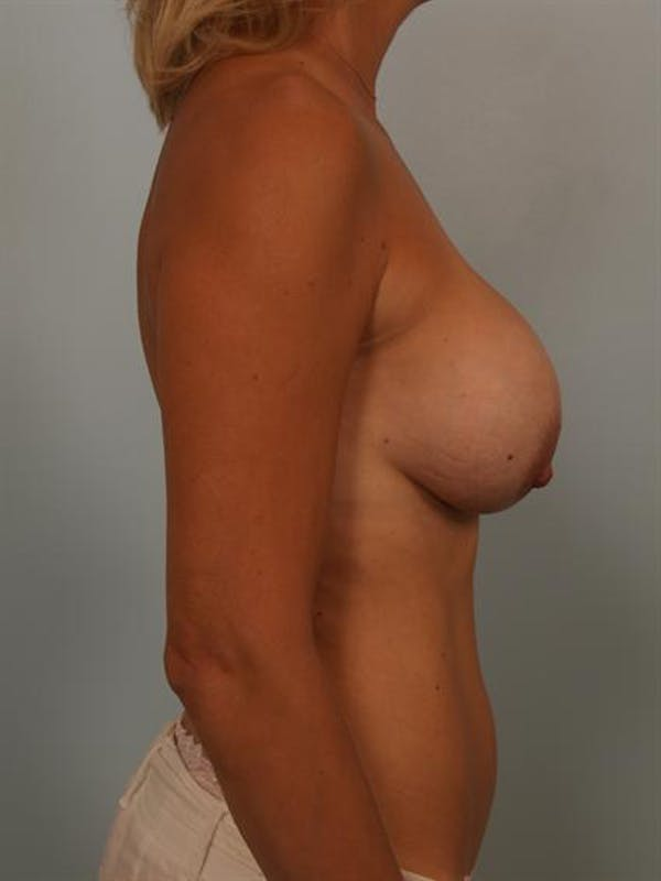 Complex Breast Revision Gallery - Patient 1310510 - Image 5
