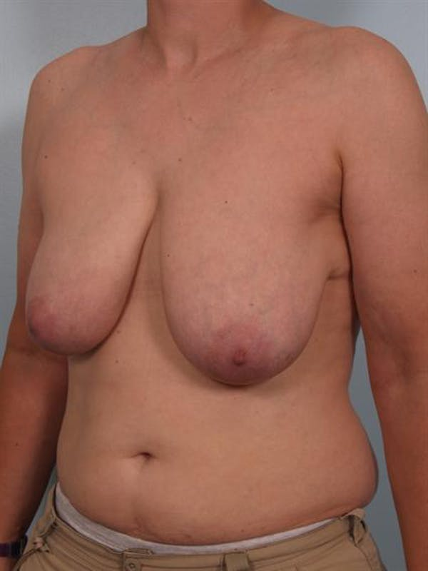 Breast Lift Gallery - Patient 1310511 - Image 5