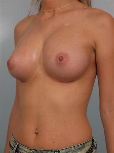 Breast Augmentation Gallery - Patient 1310512 - Image 6