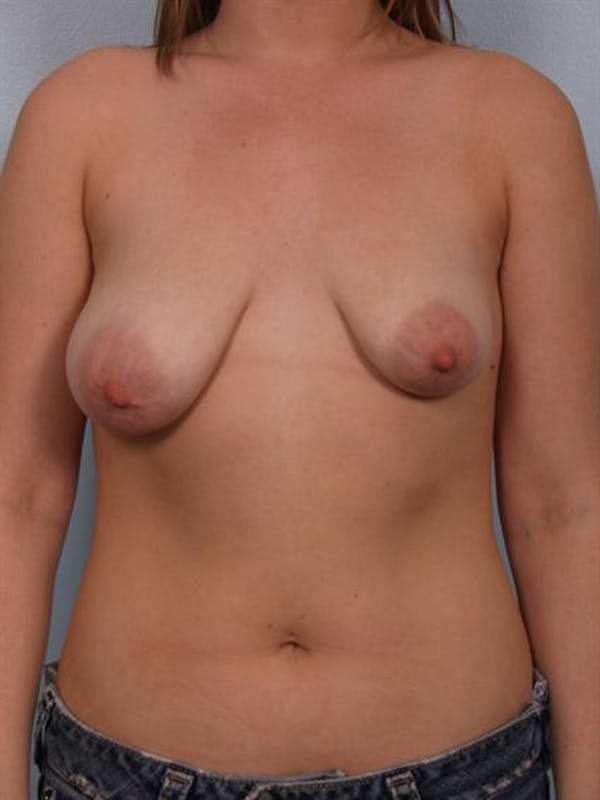 Tuberous Breast Surgery Gallery - Patient 1310513 - Image 1