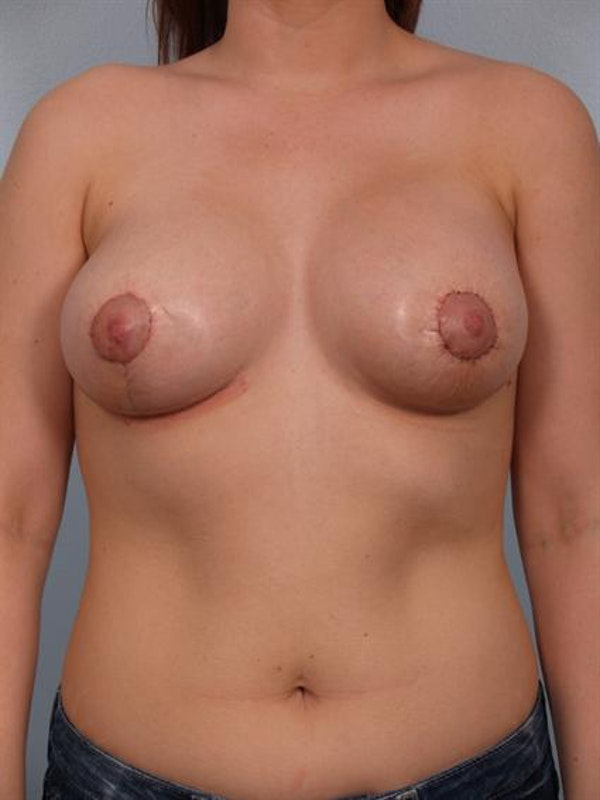 Tuberous Breast Surgery Gallery - Patient 1310513 - Image 2