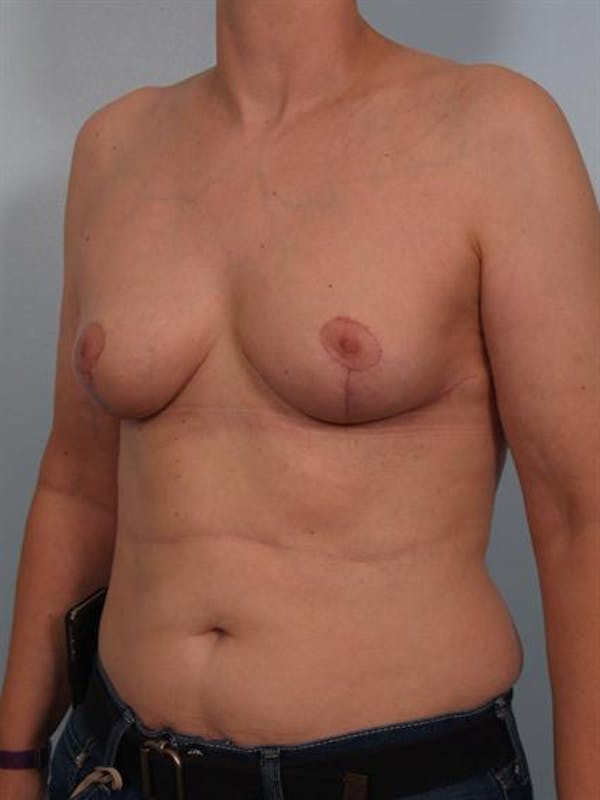 Breast Lift Gallery - Patient 1310511 - Image 6