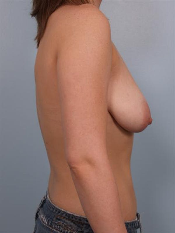 Tuberous Breast Surgery Gallery - Patient 1310513 - Image 5