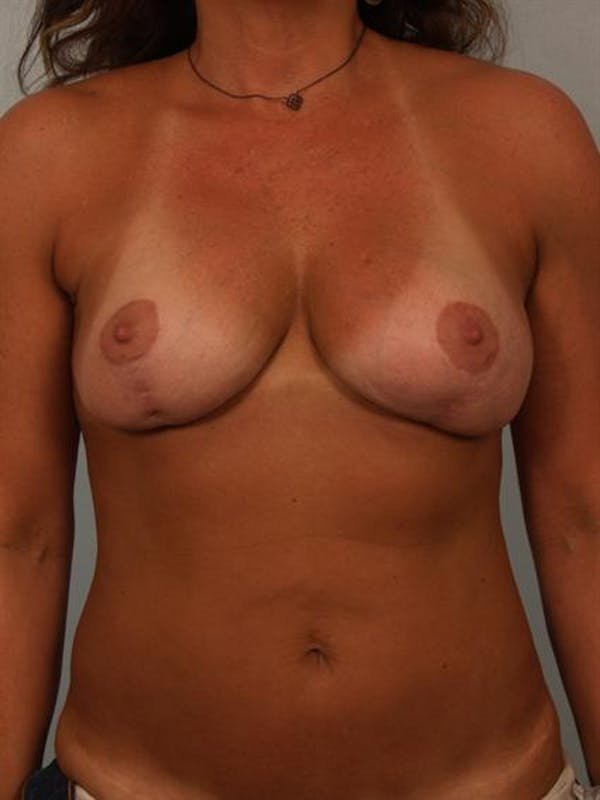 Breast Lift Gallery - Patient 1310516 - Image 1