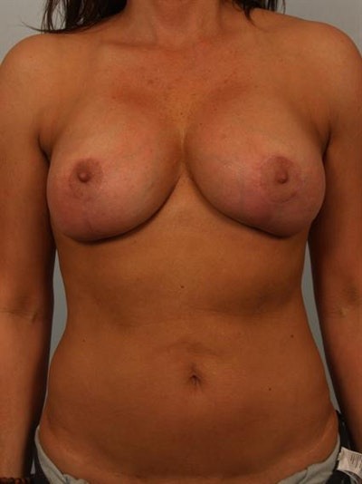 Breast Lift Gallery - Patient 1310516 - Image 2