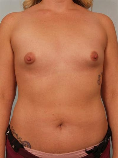 Tuberous Breast Surgery Gallery - Patient 1310515 - Image 1