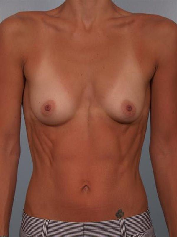 Breast Augmentation Gallery - Patient 1310517 - Image 1