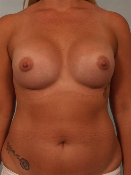 Tuberous Breast Surgery Gallery - Patient 1310515 - Image 2