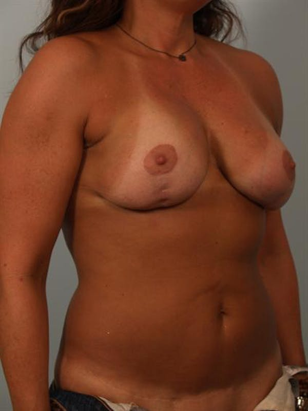 Breast Lift Gallery - Patient 1310516 - Image 3