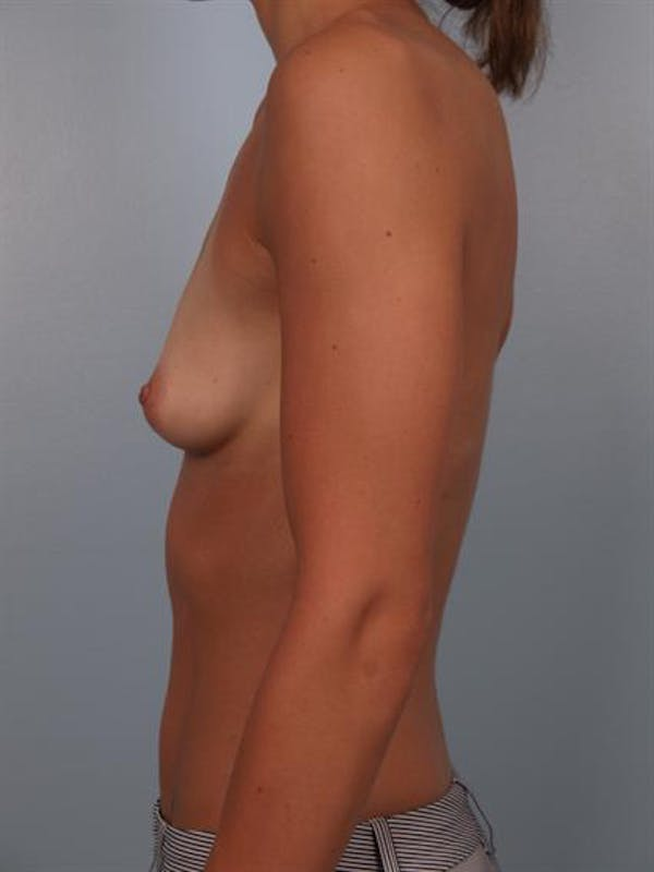 Breast Augmentation Gallery - Patient 1310517 - Image 3