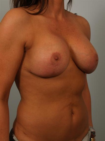 Breast Lift Gallery - Patient 1310516 - Image 4