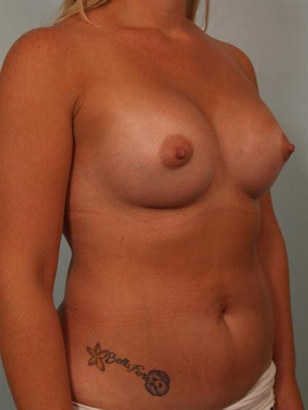 Tuberous Breast Surgery Gallery - Patient 1310515 - Image 4