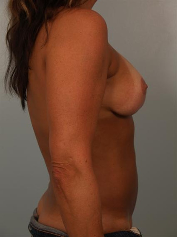 Breast Lift Gallery - Patient 1310516 - Image 5