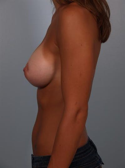 Breast Augmentation Gallery - Patient 1310517 - Image 4