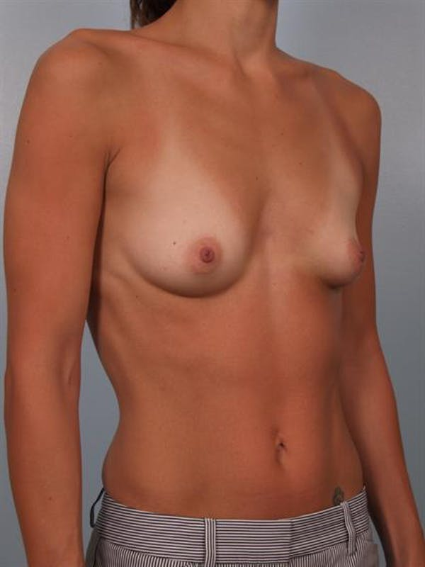Breast Augmentation Gallery - Patient 1310517 - Image 5